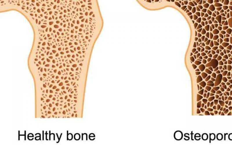 Δεν είναι η μοίρα κάθε γυναίκας η οστεοπόρωση!