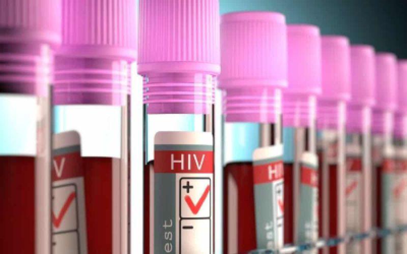 Δεύτερος φορέας του ιού HIV του AIDS θεραπεύεται - Ποια είναι η ταυτότητά του.